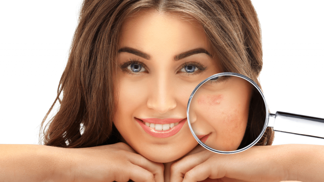 Acne Scars Cost In Hyderabad Laser For Acne Scars In Hyderabad