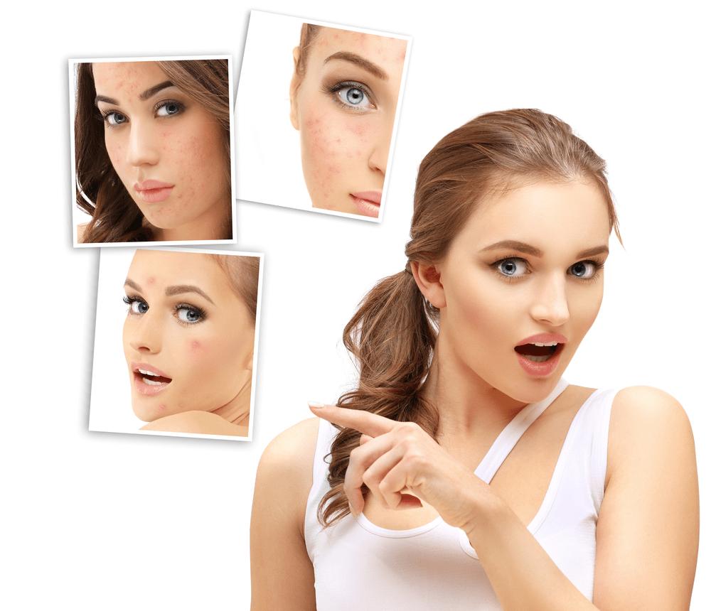 acne scar treatment in hyderabad