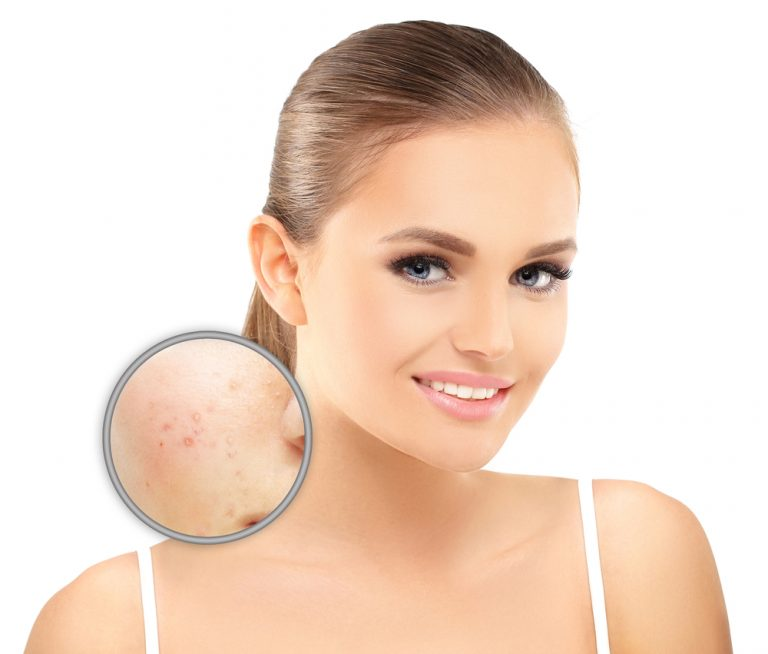 Laser Treatment for Pigmentation cost in Hyderabad