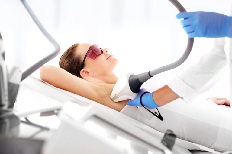 Underarm Laser Hair Removal Cost in Hyderabad