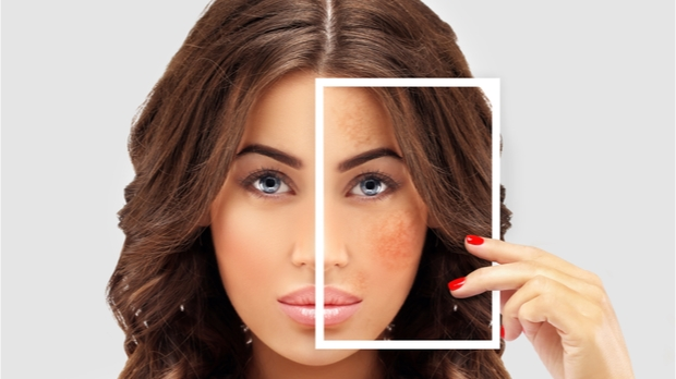 Pigmentation cost in hyderabad with laser