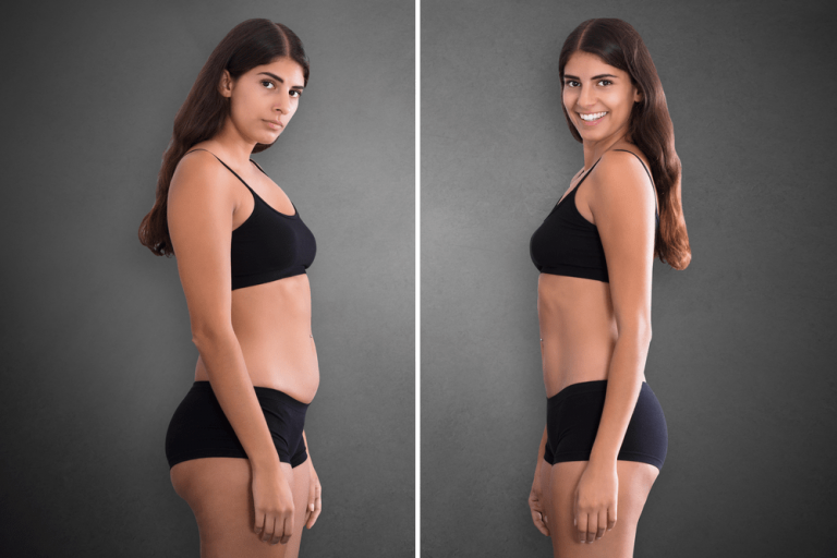 Weight Loss Treatment Cost in Hyderabad
