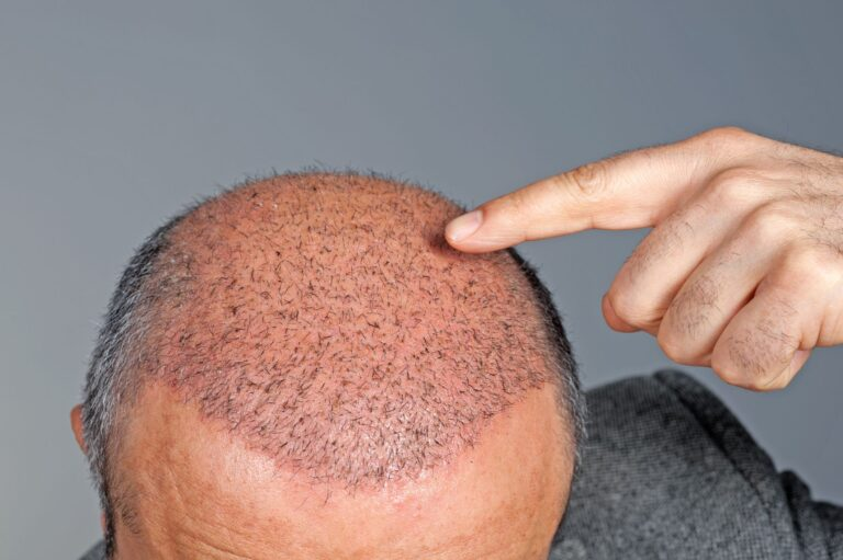 Demystifying the Process of Hair Transplantation in Hyderabad