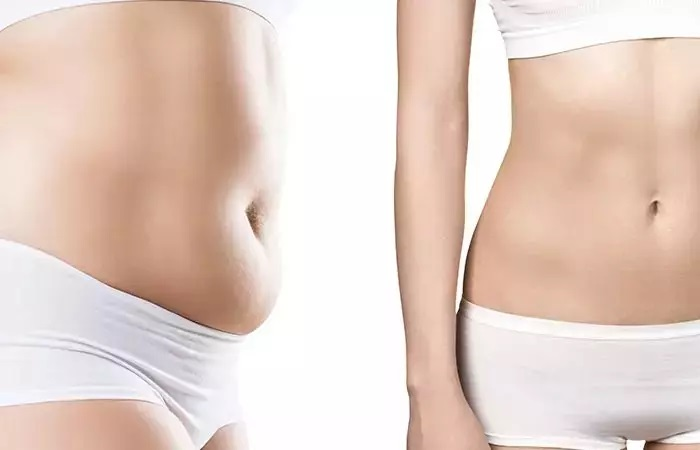 Cost of Coolsculpting in Hyderabad