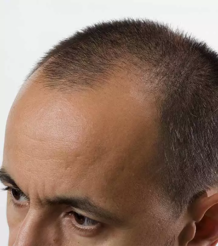 Hair Transplantation Cost in Hyderabad