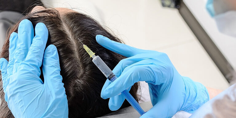 PRP Hair Loss Treatment in Somajiguda