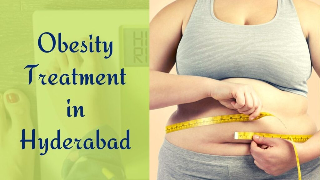 Obesity Treatment in Hyderabad