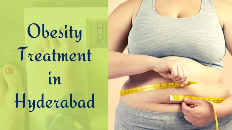 Obesity Treatment in Hyderabad & Tips to Reduce Overweight