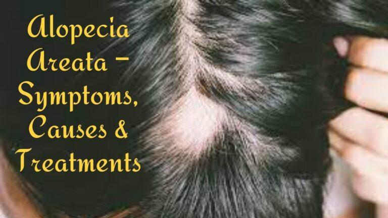 Alopecia Areata – Symptoms, Causes and Treatments
