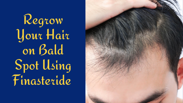 Finasteride for Hair Loss: Uses, Dosage & Side Effects