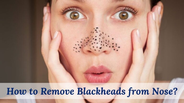 How to Remove Blackheads from Nose?