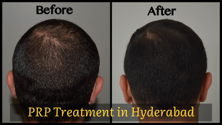 PRP Hair Loss Treatment in Hyderabad