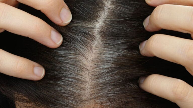 Scalp Folliculitis – Causes, Symptoms, Treatments, and Prevention