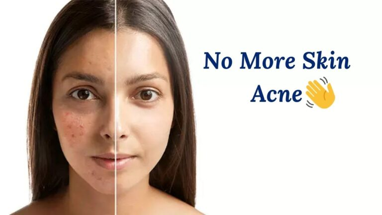 What Is Nodular Acne & How Can You Treat It?
