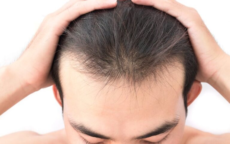 Why Do I Have a Receding Hairline?
